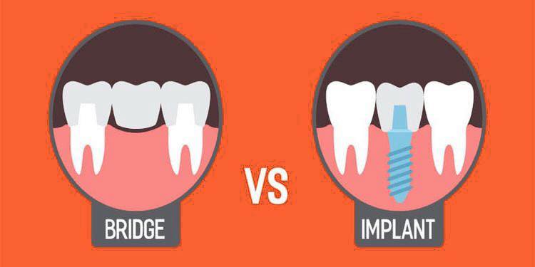 Tooth Replacement Options